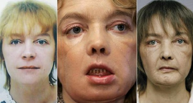 mujer transplantada